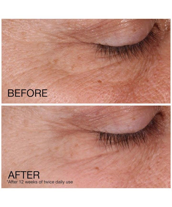 Rapid Wrinkle Repair® Regenerating Anti-Wrinkle Retinol Cream + Hyaluronic Acid