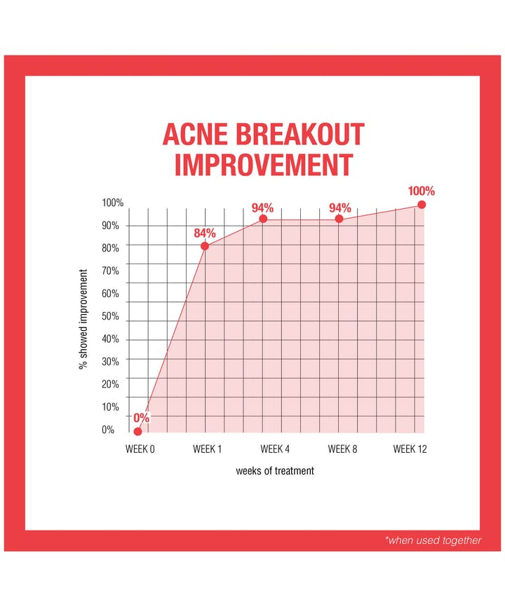 Stubborn Acne AM Treatment